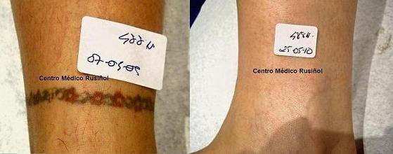 Eliminación de tatuaje CMR